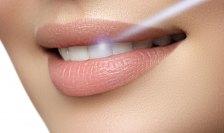 Лазерные технологии в стоматологии